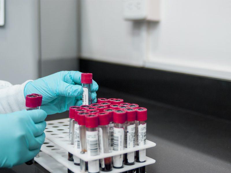 Wyniki analizy krwi, jak je odczytać? Morfologia czyli: OB - RBC - HGB - PLT 1 - Twój Głos 📢 e-TG.pl