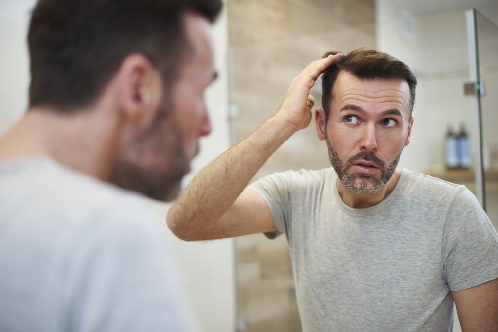 Naturalne sposoby na wypadanie włosów - sprawdź jak temu zaradzić? 2 - Twój Głos 📢 e-TG.pl